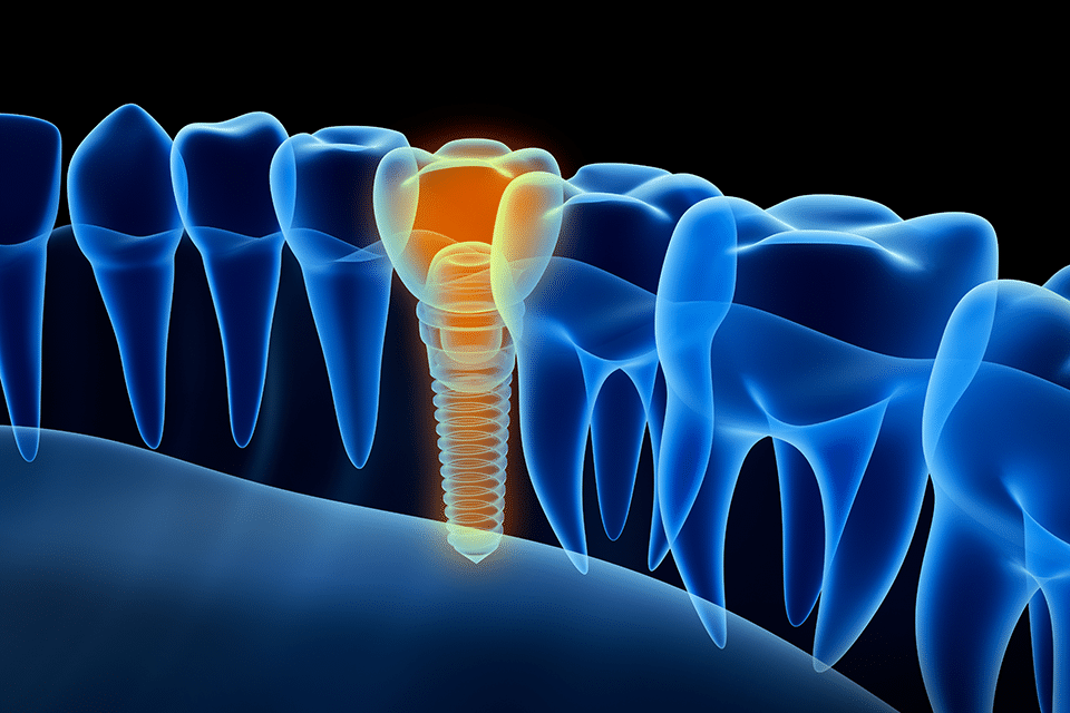 single_tooth_implants