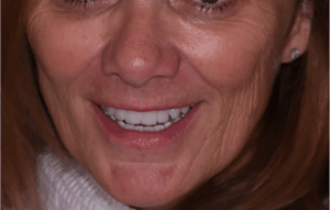All On 4, All on 6 and Teeth In A Day Dental Implants