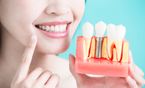 How Dental Implants Can Improve your Life