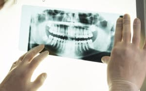 Oral and Maxillofacial Radiology (X-rays)