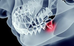 Controlling Pain in Dentistry