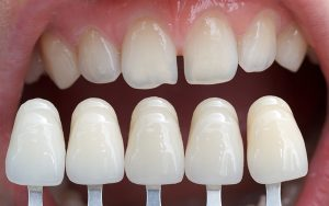 Esthetic Dentistry: Cosmetic Dentistry to Improve Your Smile